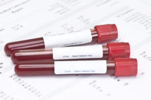 Blood tests for 3 sexually transmitted diseases on laboratory report.